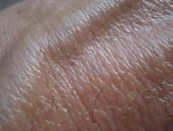 Pathway Genomics – SkinFit®